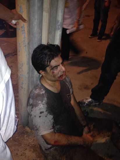 Uno de los brasileños agredidos por los panistas