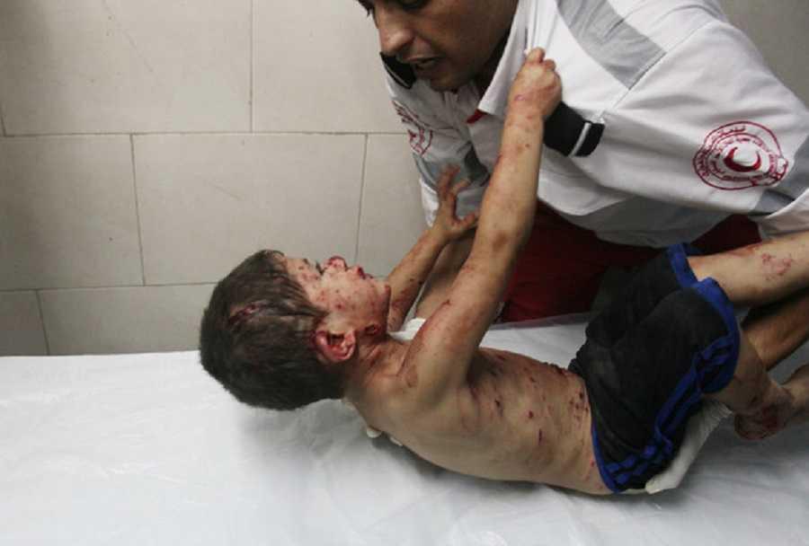 Gaza: Belal Dabour, médico, relata la historia detrás de una imagen