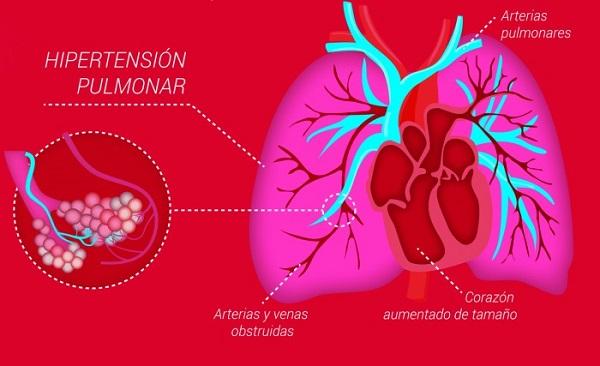 Hipertensión pulmonar, mal silencioso que ataca a las mujeres