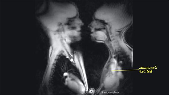 Así se ve el sexo en un escáner de rayos X