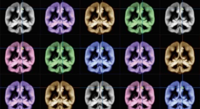 Medicina disminuye crecimiento de tumores cancerígenos en el cerebro