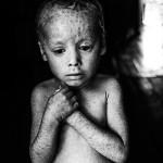 Monsanto y sus agrotóxicos; el costo humano