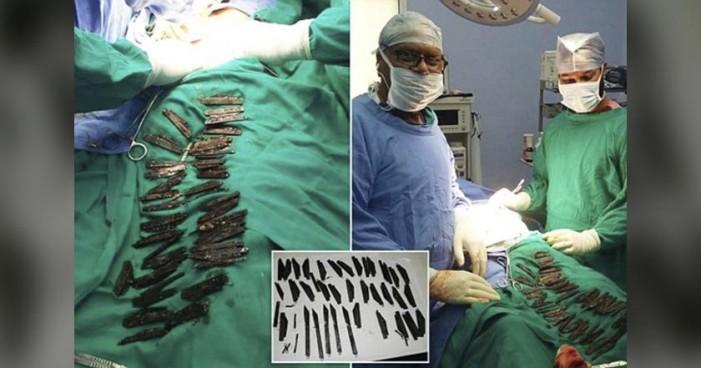 Policía hindú se hospitaliza por dolor de estómago, se había tragado 40 cuchillos