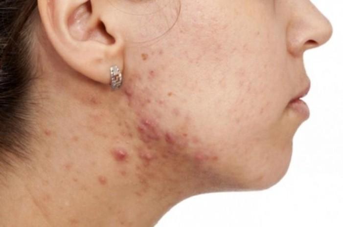 Sufrir acné podría mantenerte joven