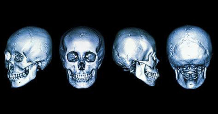 Reconstruyen cráneos con impresoras 3D en Guadalajara