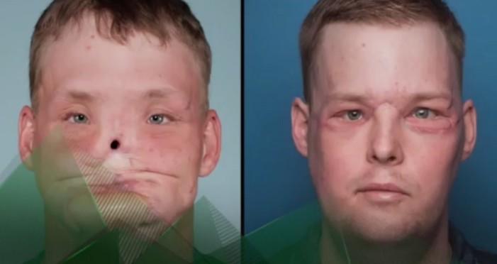 Perdió la cara hace 10 años, pero un trasplante lo devolvió a la normalidad