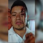 Antorcha Campesina ataca a brigadistas de Morena en Edomex