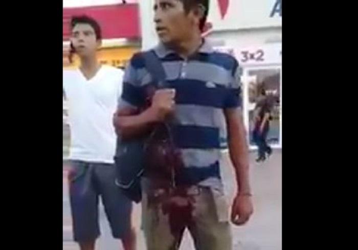Intentan asaltar a un hombre, lo apuñalan y permanece de pie, desangrándose (VIDEO)