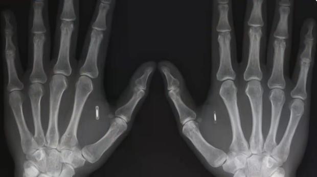 Empresa de EU planea implantar microchips a sus empleados