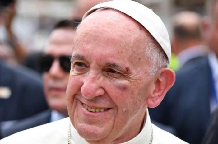 Por saludar a niño, Papa Francisco termina con el ojo morado (VIDEO)