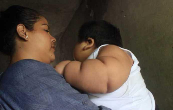 Bebé de Colima tiene 10 meses y pesa 30 kilos, podría padecer síndrome de Prader-Willi