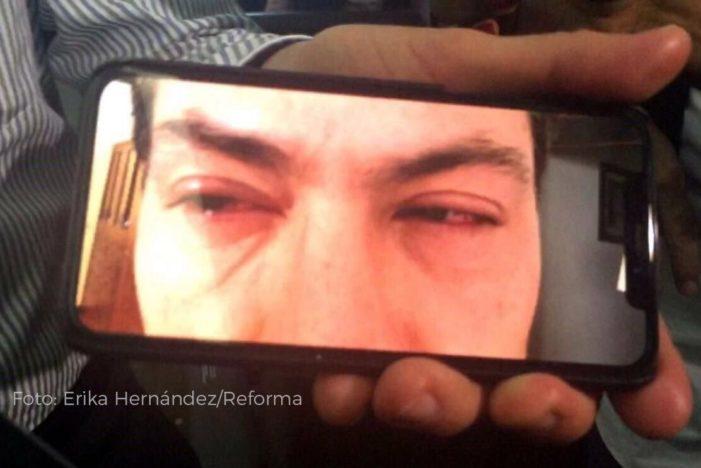 Una luz me quemó los ojos dice Peña Nieto sobre ojos rojos