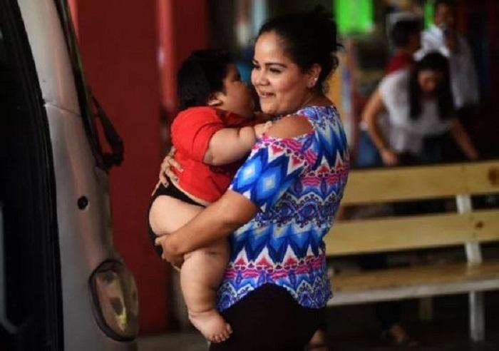 Aumentan casos de obesidad infantil; bebés de 20 kilos no pueden ni gatear