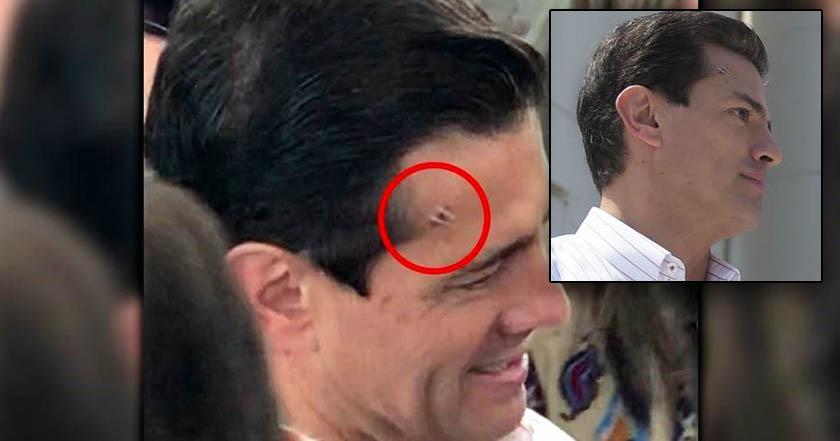 Aparece Peña Nieto con un golpe en la cabeza; se pegó con una puerta