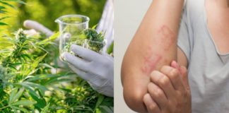 Compuesto de cannabis útil para combatir enfermedades de la piel