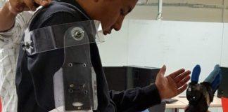 UNAM: Diseñan prótesis de mano hecha con PET y PCV