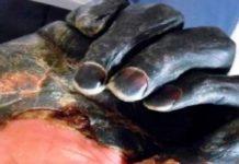 China, dos casos de peste bubónica