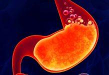 Reflujo y cáncer, principales enfermedades gástricas en México
